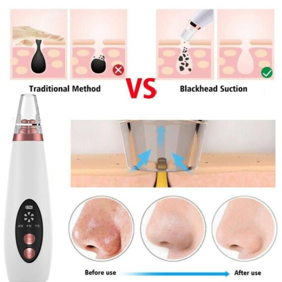 USB Rechargeable Blackhead Remover Face Pore Vacuum Skin Care Acne Pore Cleaner Pimple Removal Vacuum Suction Tools